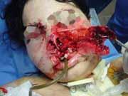 facial_injury.png